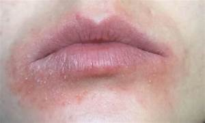 Image Gallery lip allergies