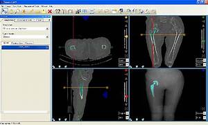 surgical medical software for orthopedic templating flickr With orthopedic templating software