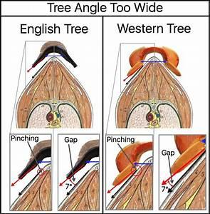 Tree Angle  Part 1