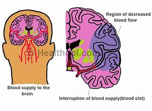 Blood Clots In The Brain
