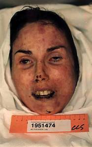 Autopsy Photos - Lisa McPherson