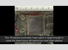Beating heart patch is large enough to repair the human
