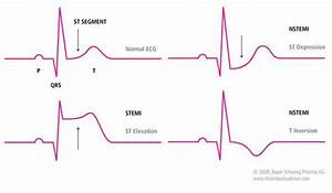 Illustration Of Normal Ecg And Ecgs Showing Stemi And