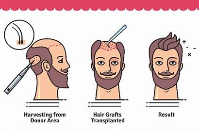 Transplant Hair Surgery Process Does Pre Fue