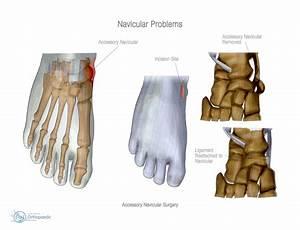 Navicular Problems | Orthopaedic - Adam Budgen