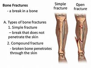 Bone Fractures Name and describe the various types of ...