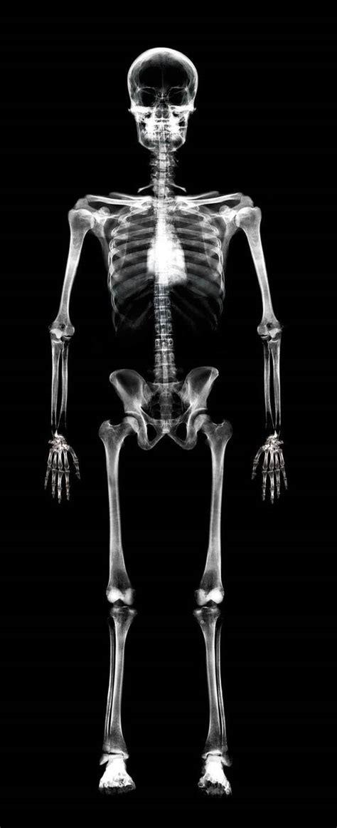 ray body human skeletal bone bones survey skeleton density scan cancer breast rays spread incredible photoshop xrays osteoporosis calcium metastatic