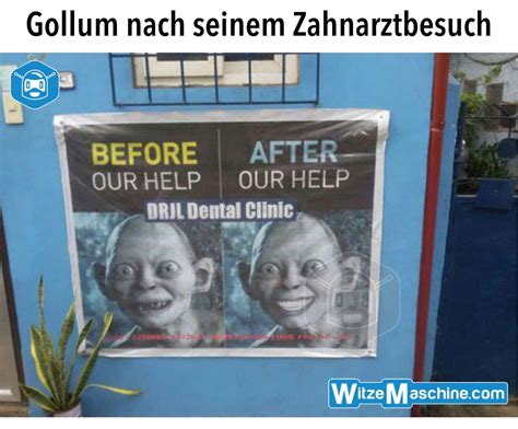 arztwitze zahnarzt witze gollum meme lustig weisse