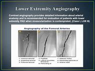 Best 25 ideas about lower extremity find what youll love lower extremity angiogram anatomy sciox Image collections