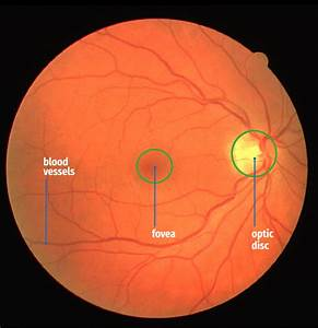 The Blood Vessels  Optic Disc And Fovea In A Fundus Image
