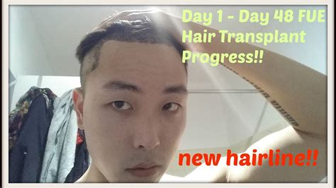 Day 1 to Day 48 FUE Hair Transplant Progress! - YouTube