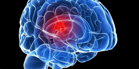 Mencegah Untuk Hamil Gejala Cara Mencegah Dan Obat Kanker Otak