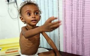 Some 85,000 children in Yemen may have died from hunger ...  Children