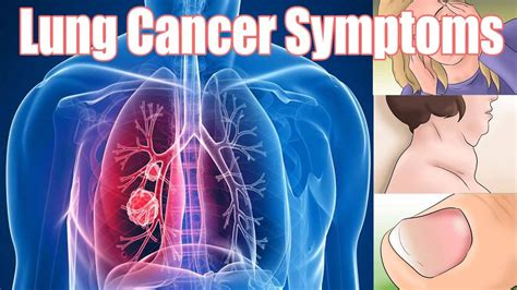 10 Symptoms Of Lung Cancer. Number 11 Signs. Room Tumblr Signs Of Stroke. Children's Signs Of Stroke. Office Floor Signs Of Stroke. Girly Signs. Comfort Signs Of Stroke. Quicksand Signs. Led Signs