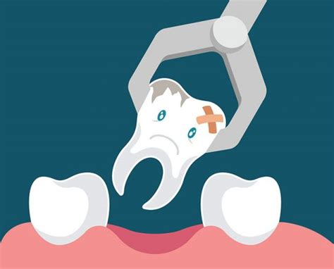 Tooth Extraction - Dentists Grand Rapids MN | Grand Dental ...