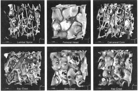 Examples Of 3d Reconstructions Of Cancellous Bone