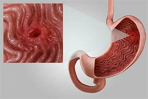 what causes stomach ulcers