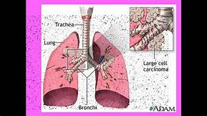 Effects Of Smoking For Igcse Biology