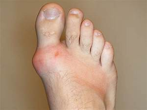 Gout  Guidance Issued On Treat