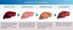 Whose Liver Is At Greater Risk  The Obese U2019s Or The Binge