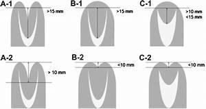Diagnosis Of Bicornuate  A   Septate  B   And Arcuate  C