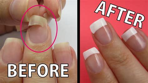 Repair A Ripped Nail Fast!