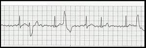 Float Nurse  Basic Ekg Rhythm Test 07
