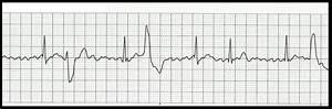 Float Nurse  Basic Ekg Rhythm Test 07