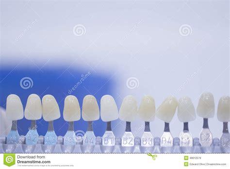 bureau des licences guide dentaire de couleur de dent pour des implants et des