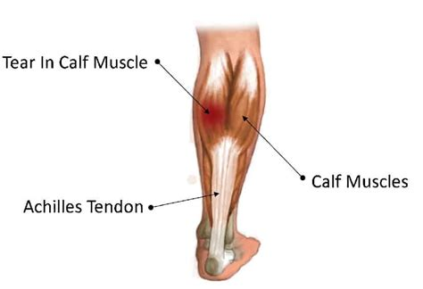Essentially, what all these terms refer to is one of the. Calf muscle pain treatment with 3 exercises   Videos included