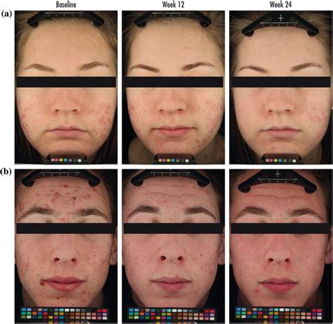 Adapalene 0.3% May Help Improve The Appearance Of Atrophic