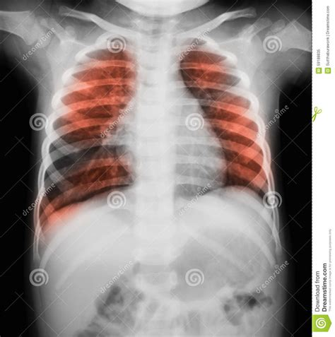 Chest Xray Image Of A Young Boy Showing Lung Infection. Cheapest Homeowners Insurance In Florida. Gm Insurance Lowell Ma Best Foundation Plants. Small Business Owners Insurance. York Heaters And Air Conditioners. Assisted Living Cambridge Ma. Attorney General California Ne Pest Control. Fsu College Of Nursing Ios Developer For Hire. Law Offices Of Thomas J Henry