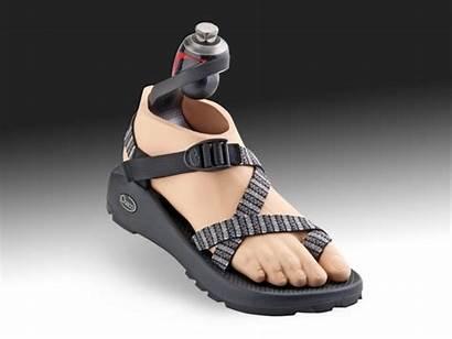 Foot Prosthetic Agilix Freedom Global Innovations Market
