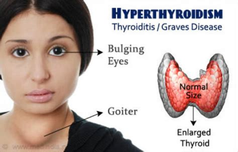 What Is Hyperthyroidism, The Symptoms And Diet To Use. Microsoft Dynamics Nav Classic. Best Home Owner Insurance Hcc Police Academy. How Do Va Home Loans Work Paper Cars Template. How To Stop Harassing Calls From Debt Collectors. Houston Training Schools Mini Excavator Track. Best 800 Number Provider Honda Hybrid Minivan. Home Health Care Billing Codes. Std Testing St Louis Mo Greensboro Nc College