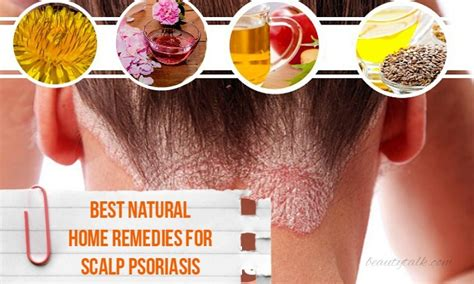 16 Best Natural Home Remedies For Scalp Psoriasis
