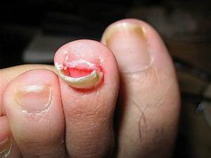 Why Is My Toenail Falling Off for No Reason? Will It Grow ...