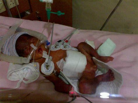 Janin Perempuan Lebih Cepat Lahir Kelahiran Prematur 26 Minggu Dan Bonus Tuhan Yang Sangat