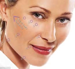 what not to take before botox