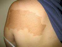Virtual Grand Rounds in Dermatology - Primary Care: Pigmented Patch and Congenital Deafness  Skin Cancer Birthmarks - pigmented