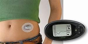 Better Diabetes Control Through Software