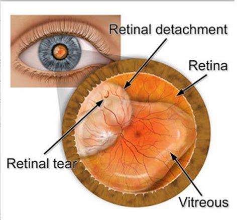detached retina signs symptoms of retinal detachment