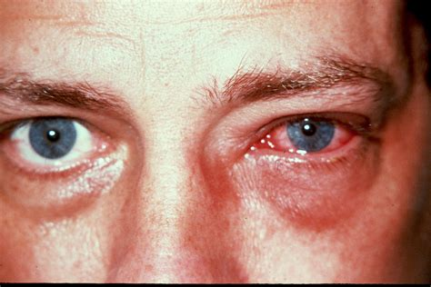 Rood vlekje in het oog