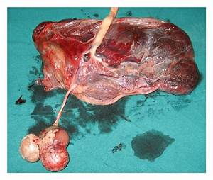 Placental Teratoma Presenting as a Lobulated Mass behind ...