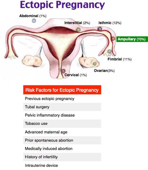 Rapid Review: Ectopic Pregnancy - RoshReview.com