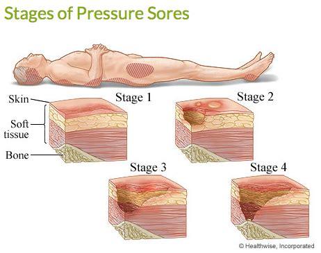 32186 new bed sore treatment pressure sores elder news