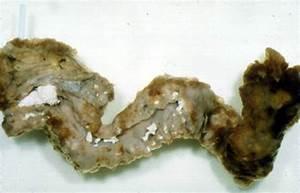 Pancreas  Yellow Stool Pancreas