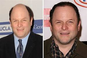 Jason Alexander Hair Transplant Before and After ...