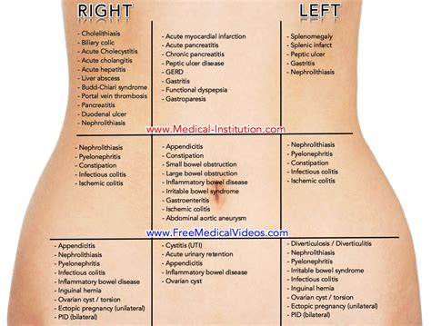 Abdominal Pain Differential Diagnosis Based On Location