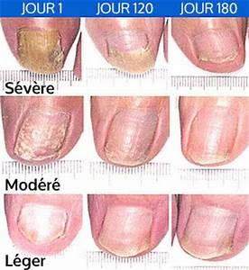 Remede mycose ongle