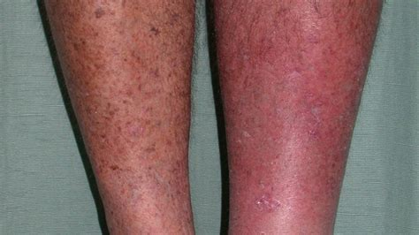 skin rash pictures  types  treatments